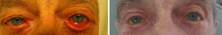 Operazione chirurgica dell'ectropion. Prima e Dopo CASO 3.