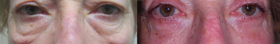 blefero inferiore3 - Blefaroplastica inferiore: intervento laser su borse sotto gli occhi