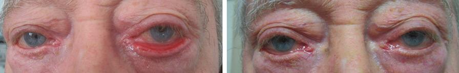 Operazione chirurgica dell'ectropion. Prima e Dopo CASO 1.