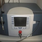 laser KTP
