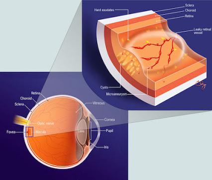Nuovo laser 2RT per retinopatia diabetica