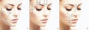 Profilo e ovale del viso e1412535712443 300x101 - I fili di trazione antirughe. Lifting non chirurgico.