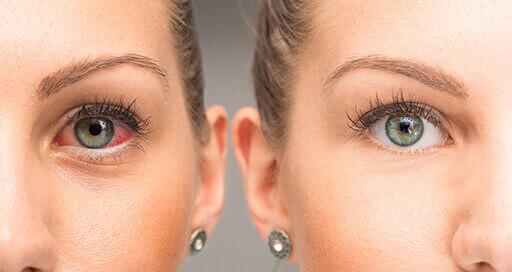 Sindrome da occhio secco
