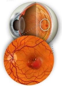 DETTAGLIO MACULA 1 - Trattamento Laser 2RT delle maculopatie | Studio Oculistico Davì dr Giuseppe