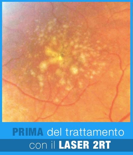 LASER 2RT maculopatia drusen prima 1 - Trattamento Laser 2RT delle maculopatie | Studio Oculistico Davì dr Giuseppe
