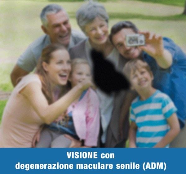 VISIONE CON DEGENERAZIONE MACULARE SENILE 1 - Trattamento Laser 2RT delle maculopatie | Studio Oculistico Davì dr Giuseppe