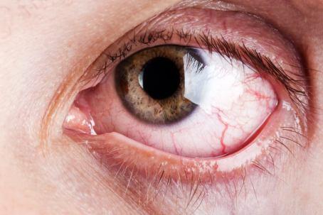 occhio rosso 1 - Diagnosi e terapia dell'occhio secco | Studio Oculistico Davì dr Giuseppe