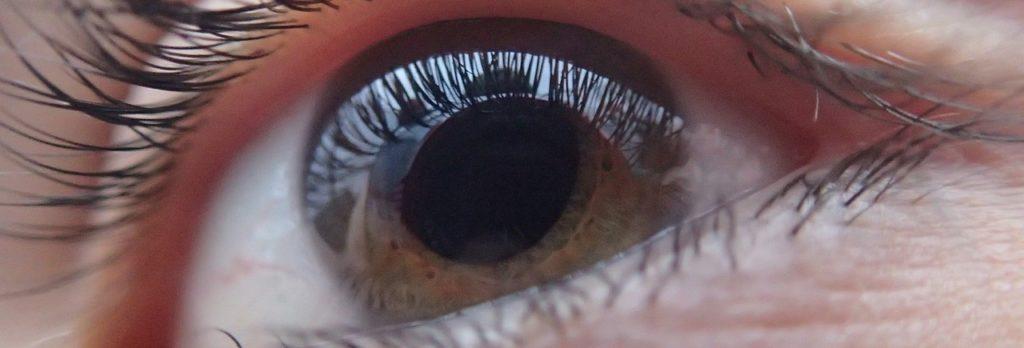 Intervento occio cataratta e1517866828629 1024x348 - Cataratta intervento chirurgico o Facoemulsificazione: durata e convalescenza