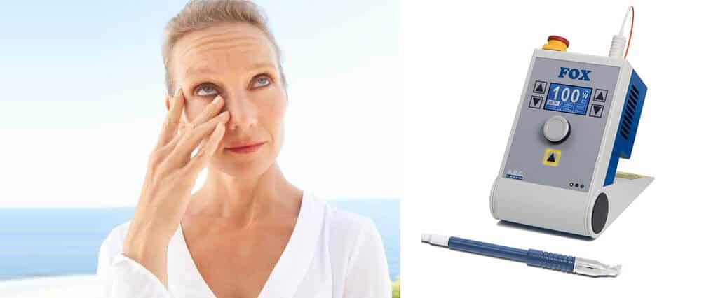 Come risolvere la lacrimazione con un intervento mininvasivo Dacriocistorinostomia (DCR) laser a diodi