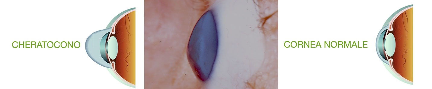 cheratocono ill - CHERATOCONO sintomi, cura e ectasia corneale