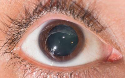 Eyetronic: nuovo metodo per curare il glaucoma