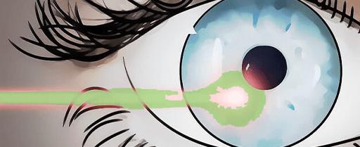 miodesposie chirurgialaser dottor davi - Chirurgia laser occhi
