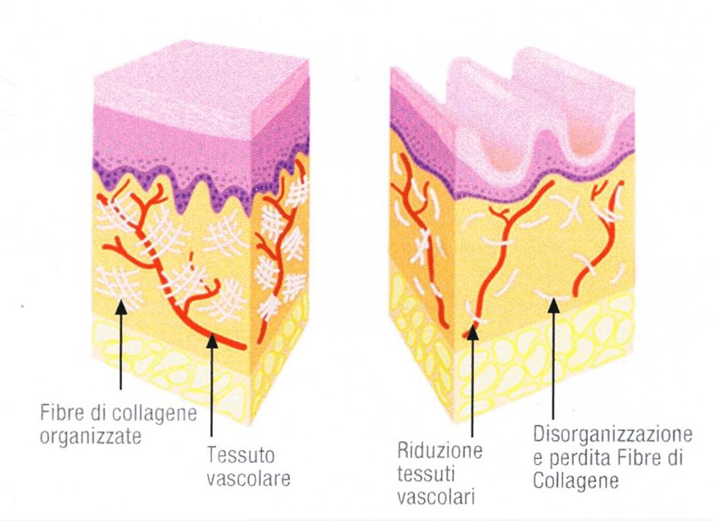 pelle invecchia - DERMAL FILLER